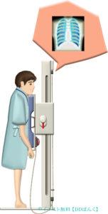 胸部X線(レントゲン)検査する男性のイラスト